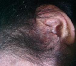 怎么缓解牛皮癣患者掉头屑