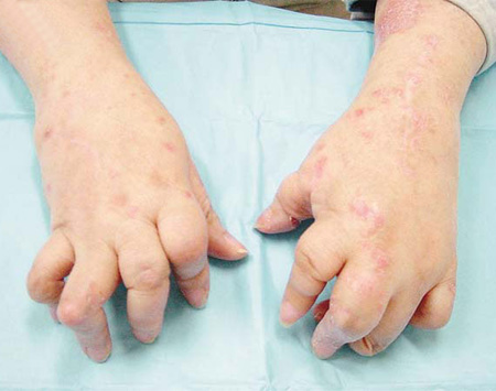 手部牛皮癣该如何护理