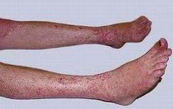 脚部牛皮癣症状是什么