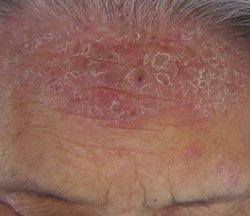 头部牛皮癣有哪些症状