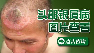 头部银屑病会导致脱发吗