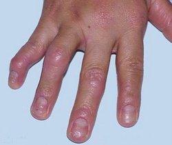 关节型银屑病的症状表现是什么