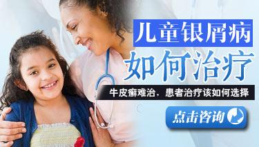 如何治疗儿童银屑病